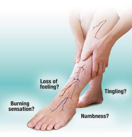 leg nerve pain