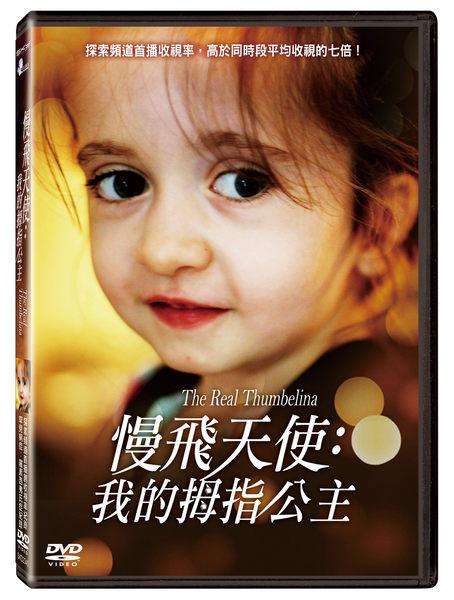 慢飛天使 我的拇指公主DVD The Real Thumbelina 探索頻道罕見病症:羅素西弗氏症(音樂影片購)